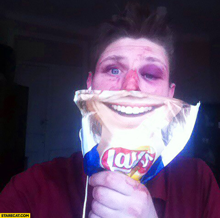 Beaten up guy with smiley lays package face smile