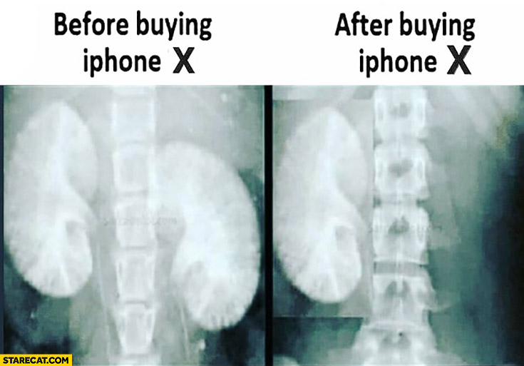 Before buing iPhone X two kidneys, after buing iPhone X one kidney
