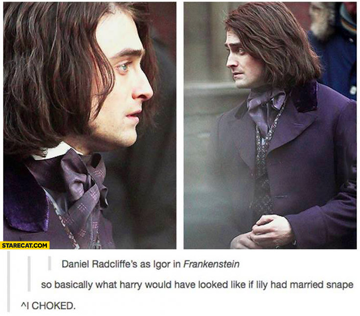 Daniel Radcliffe as Igor in Frankenstein what would Harry looked like if Lily had married Snape