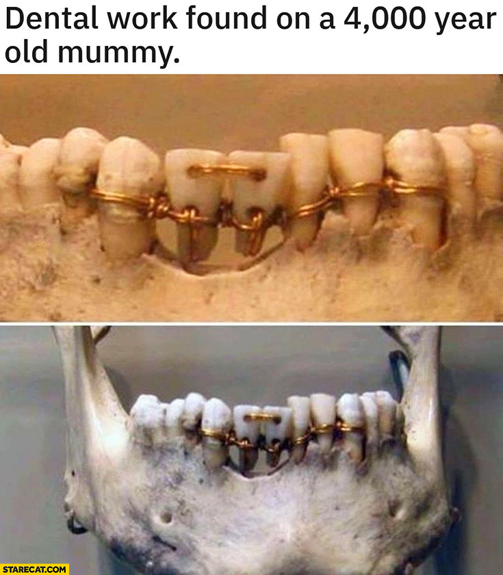 Dental work found on a 4000 year old mummy