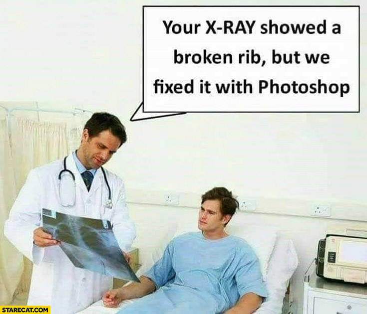Doctor: your x-ray showed broken rib but we fixed it with photoshop
