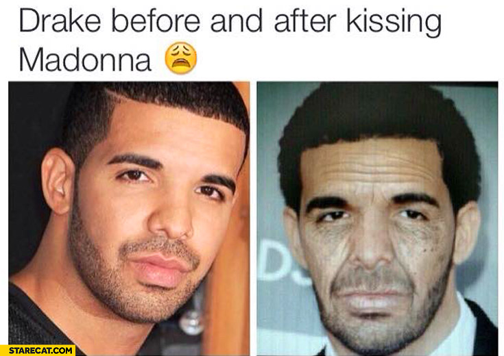 Drake before and after kissing Madonna old