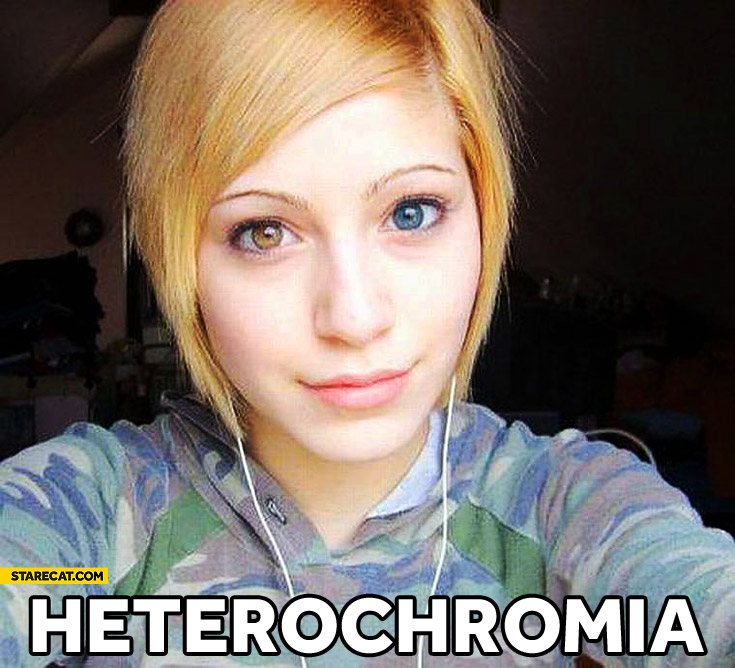 Heterochromia girl different eyes