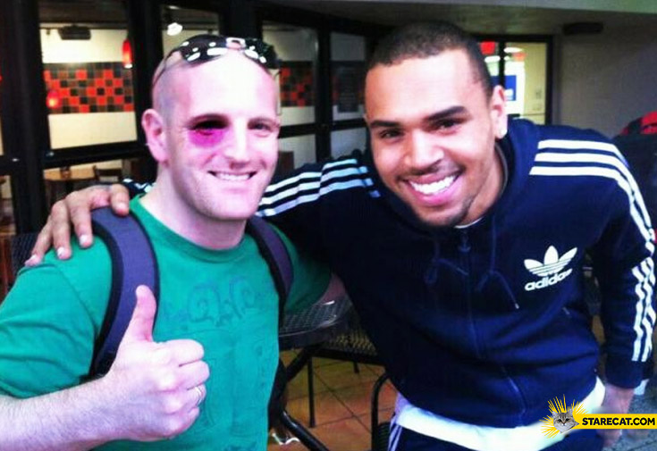Meeting with Chris Brown black eye trolling