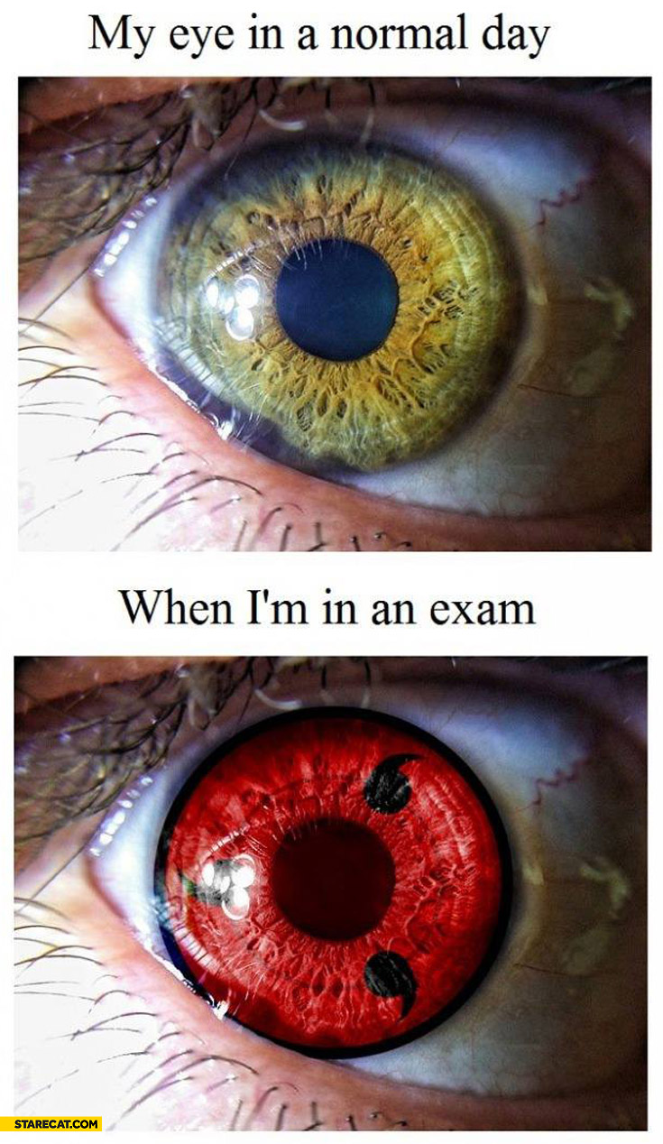 My eye in a normal day when I'm in an exam red eye