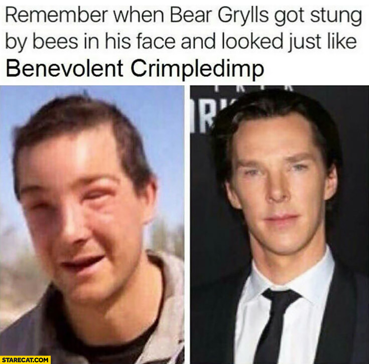 Remember when Bear Grylls got stung by bees in his face and looked just like Benevolent Crimpledimp Benedict Cumberbatch