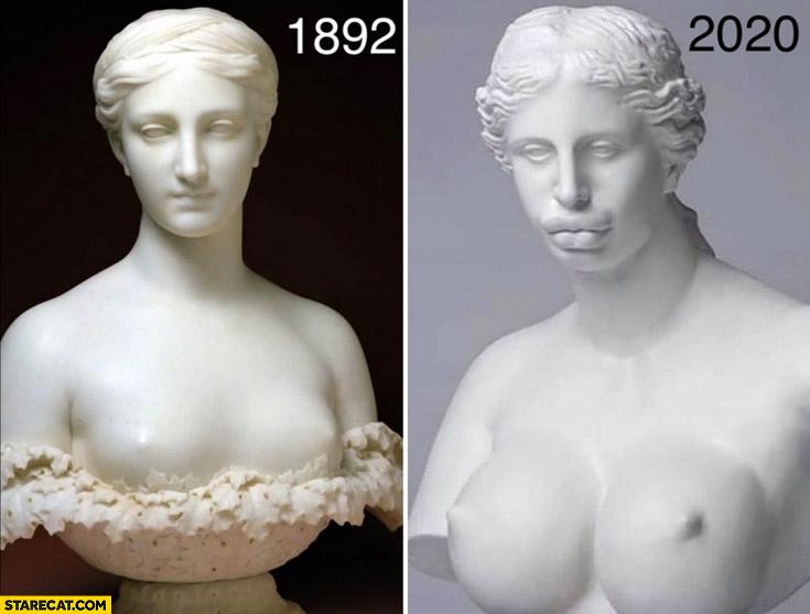 Sculpture 1892 2020 comparison plastic surgery