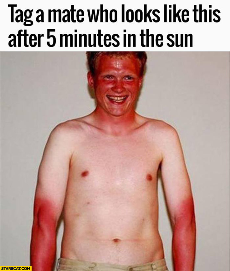 Tag a mate who looks like this after 5 minutes in the sun burnt skin