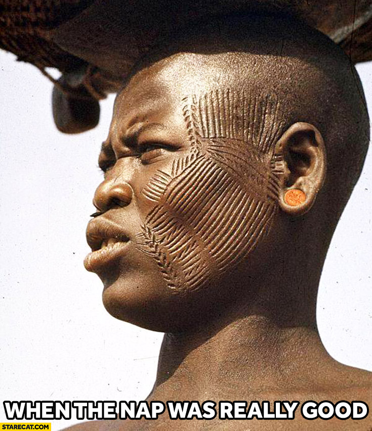 When the nap was really good marks on face